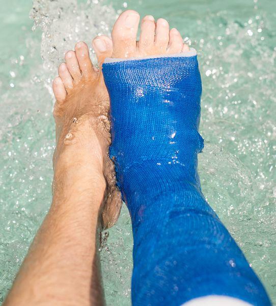 Waterproof Cast Short Leg Cast Padding Kit Delta Dry